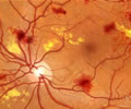 Non-proliferative diabetic retinopathy (NPDR) is the early state of the disease in which symptoms will be mild or non-existent. In NPDR, the blood vessels in the retina are weakened causing tiny bulges called microanuerysms to protrude from their walls.