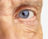 The majority of people over the age of 65 experience some symptoms of dry eyes.